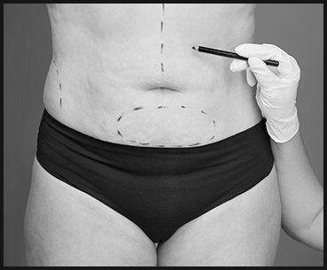 Abdominoplasty-bw
