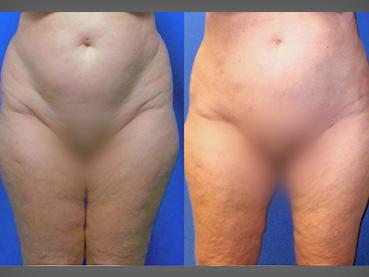 Liposuction Abdomen Woman