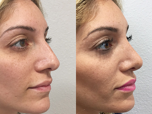 Rhinoplasty Female #1