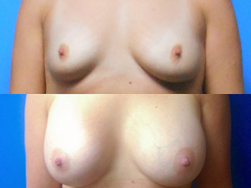 Breast Augmentation Case #2