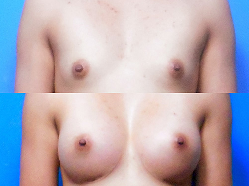 Breast Augmentation Case #3
