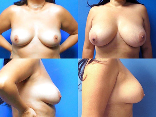 Fat Transfer to Breast
