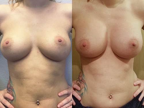 Breast Reaugmentation with Internal Restructuring Case 2
