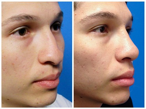 Rhinoplasty Case #1 Male