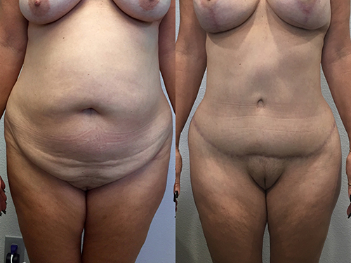 Abdominoplasty Case 3