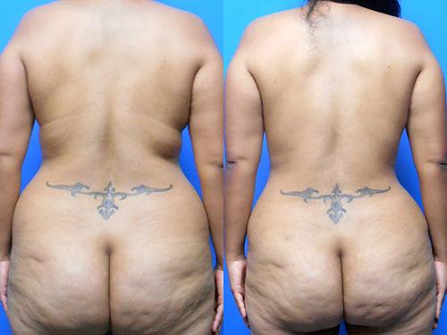 Liposuction of Back