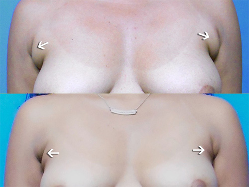 Liposuction Anterior Bra Fat
