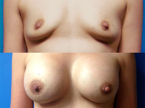 Breast Augmentation Case #5 - Front View