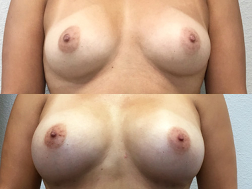 Breast Augmentation Case #7