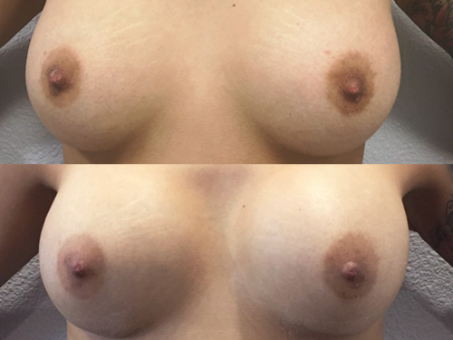Breast Augmentation Case #8 Front