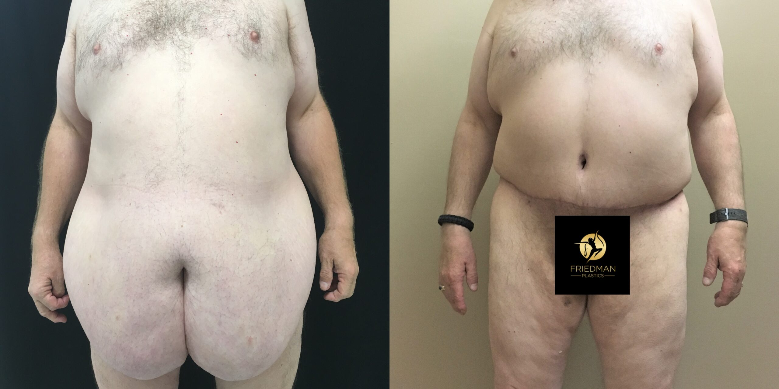 Abdominoplasty with Panniculectomy and Posterior Lower Body LiftLower Body Lift